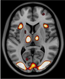A mind at work: example of a brain scan from the Wayfinding study