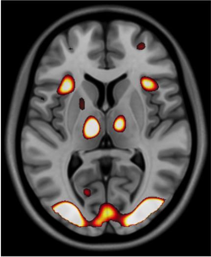 L'esprit au travail : exemple d'une scintigraphie du cerveau