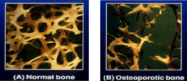 Microscopic view of healthy (left) and osteoporotic (right) bone tissue